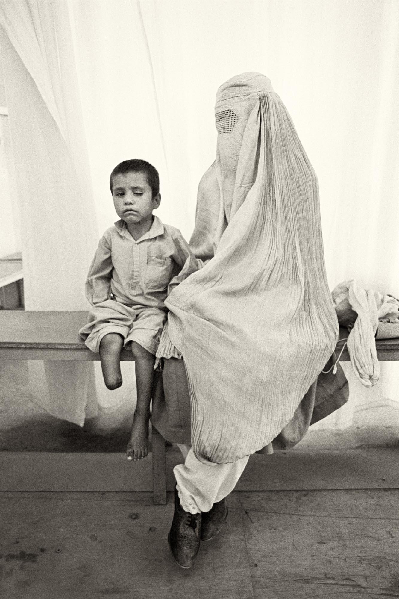 Sarwar, de seis años, perdió la pierna y un ojo en una explosión de una mina. Le acompaña su madre cubierta por la burka. Kabul (Afganistán), agosto de 1996.